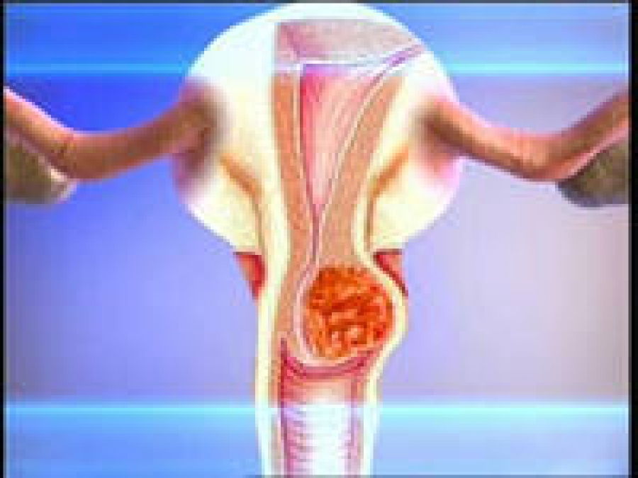 Эндометриоз оргазм